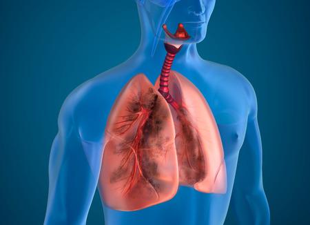 Image poumons